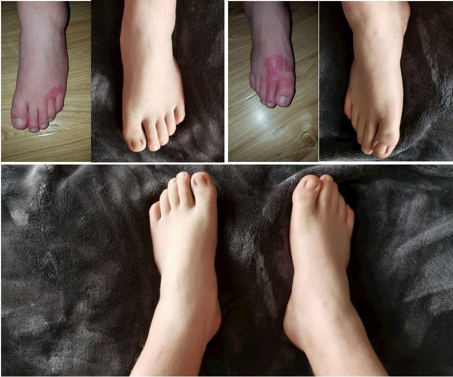 Feet-eczema-treatment