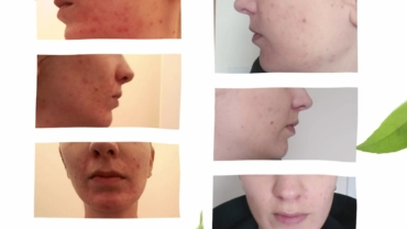 homeopathy-for-cystic-acne-dublin-15